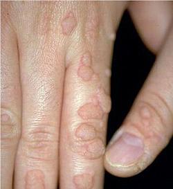 papilloma virus symptome homme