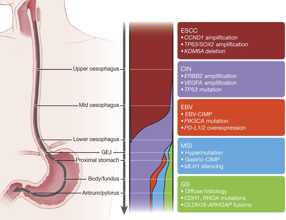 metastatic cancer esophageal
