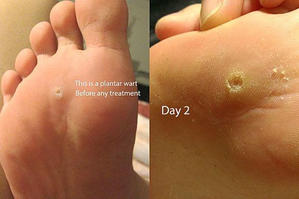 papilloma on foot treatment)