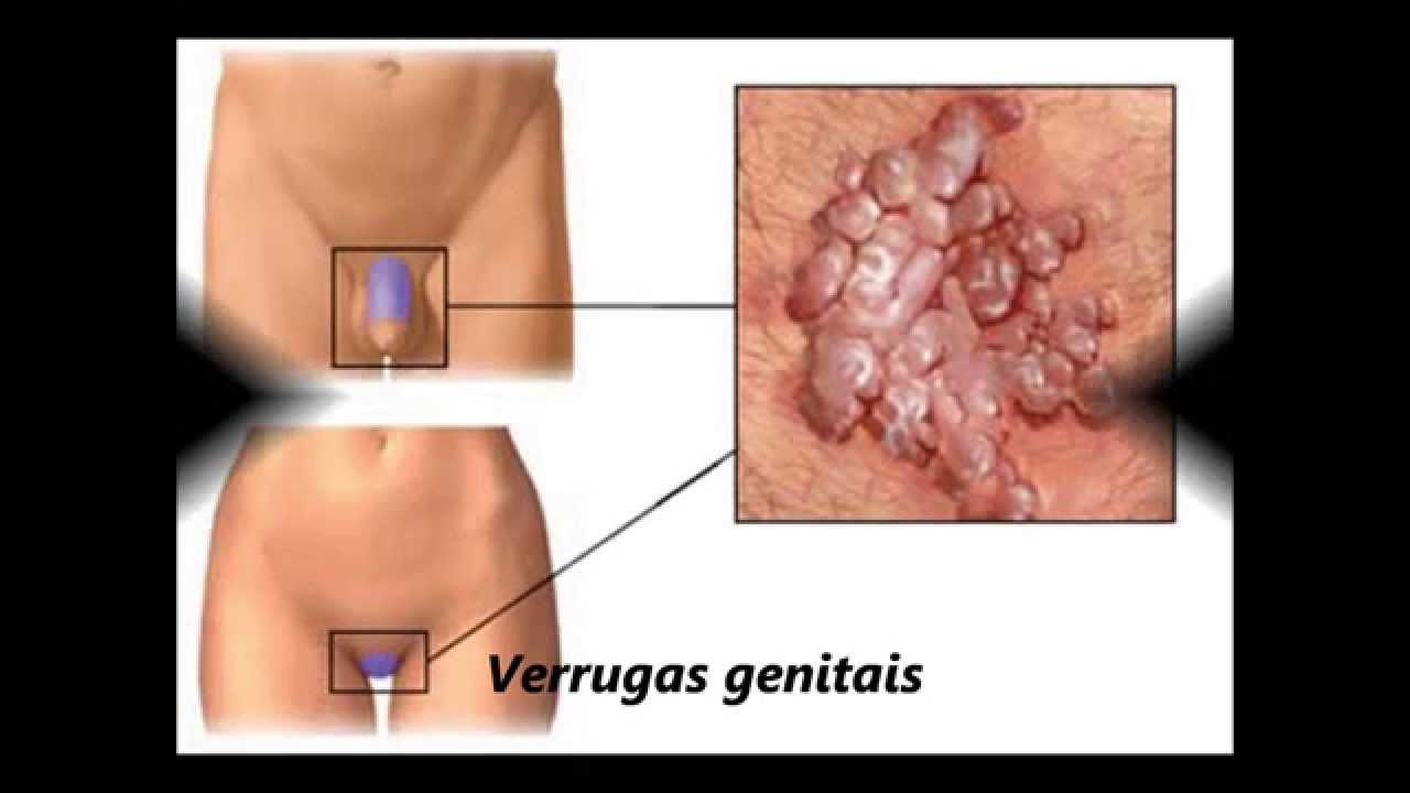 papilloma genital tratament