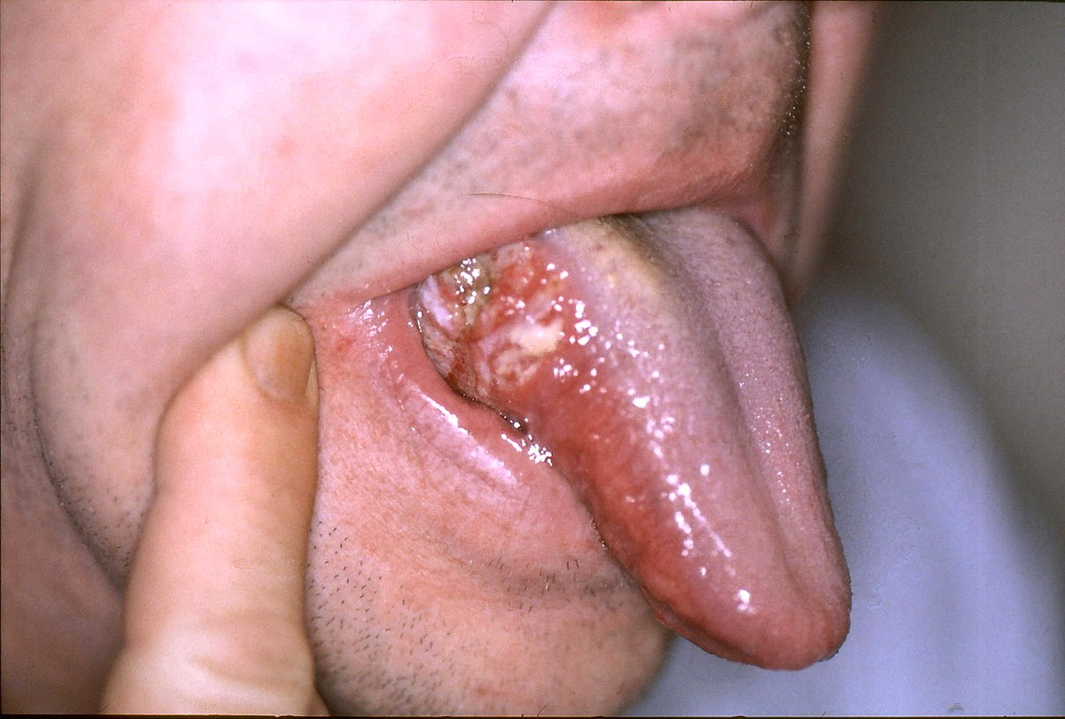 benign squamous papilloma tongue icd 10)