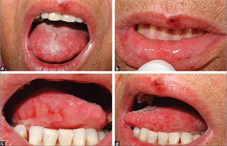 Cancerul oral - simptome, diagnostic si prevenire
