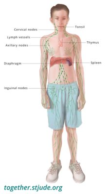 cancer linfatico hodgkin tiene cura