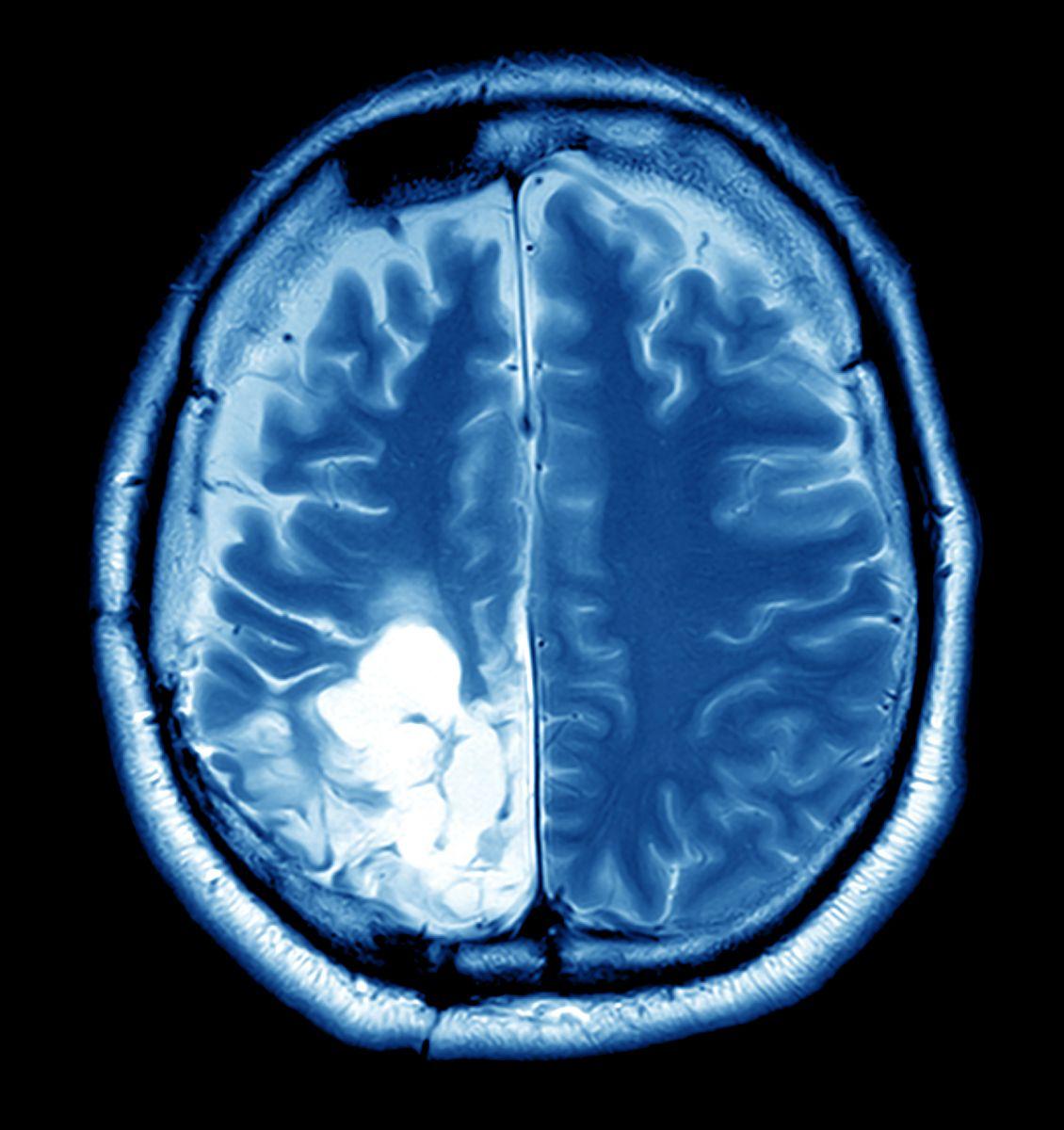 cancer cerebral primar)
