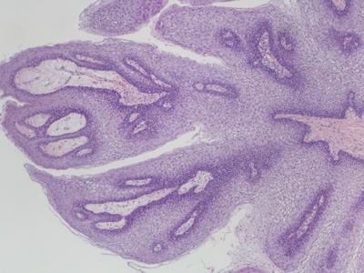 papiloma caracteristicas histologicas