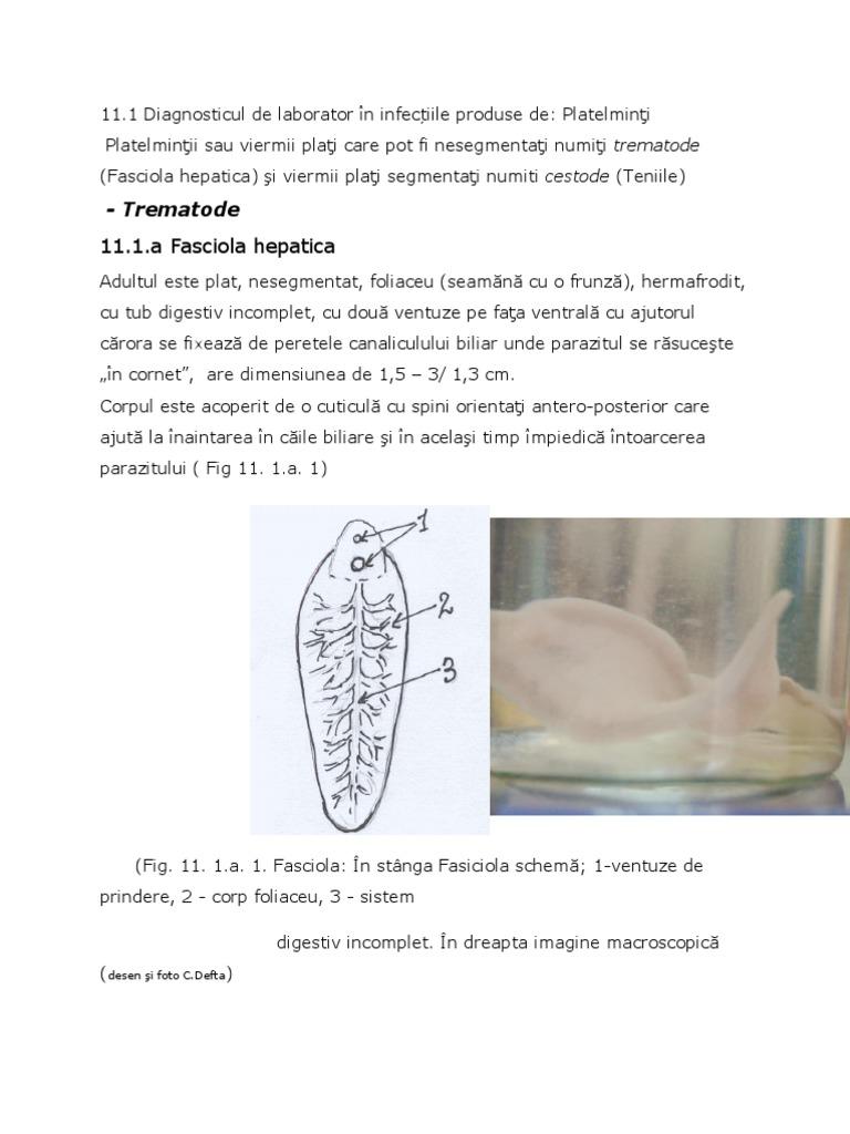 Paraziți ai ficatului și tratamentului vezicii biliare
