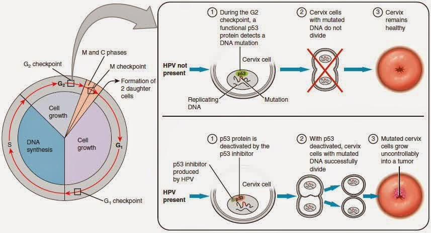 hpv cervical cancer treatment