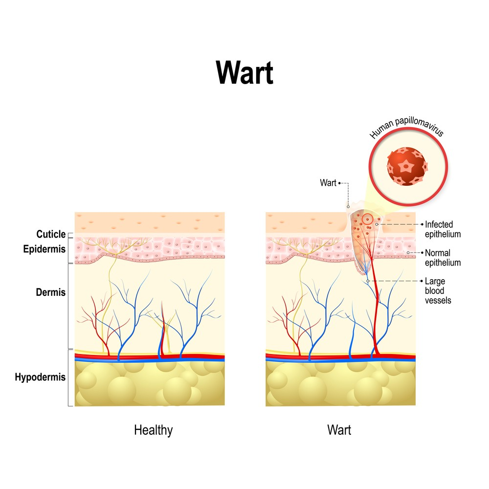 hpv warts blood test