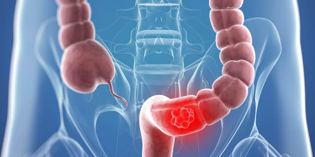 Operatia de cancer de prostata