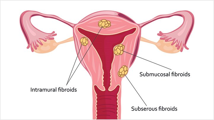 cancer uterine fibroids)