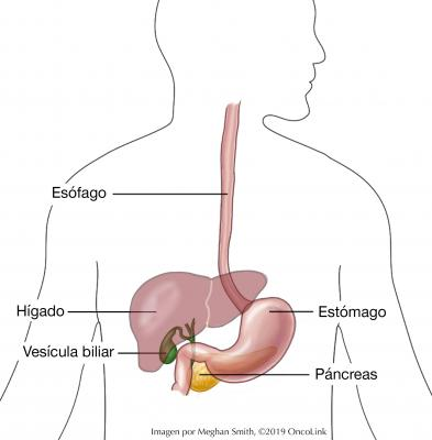 cancer caile biliare)