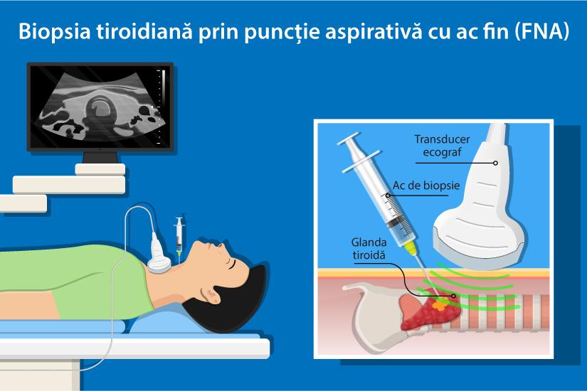 cancerul tiroidian este vindecabil)