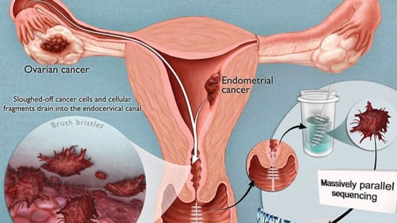 endometrial cancer ovarian)