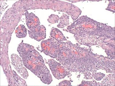 squamous papilloma urinary bladder