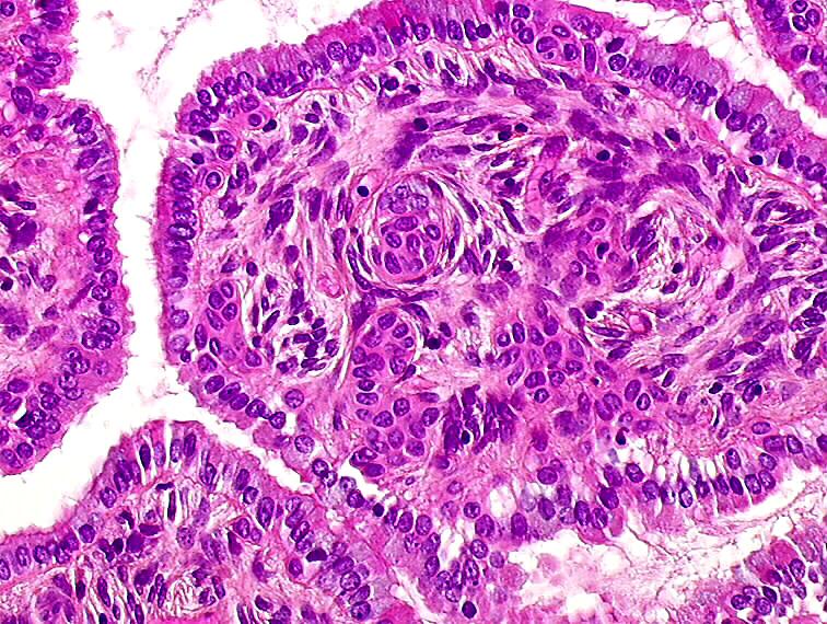 feline papillomas and papillomaviruses