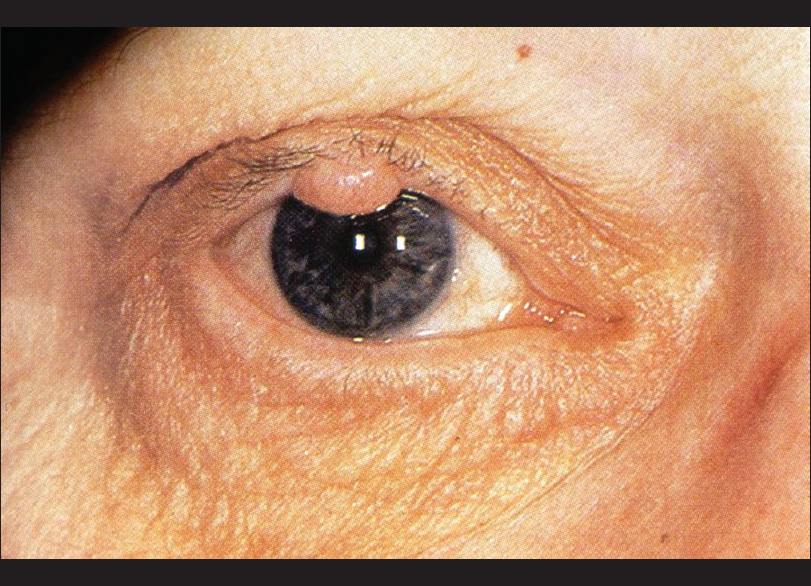 picture of papilloma on eyelid