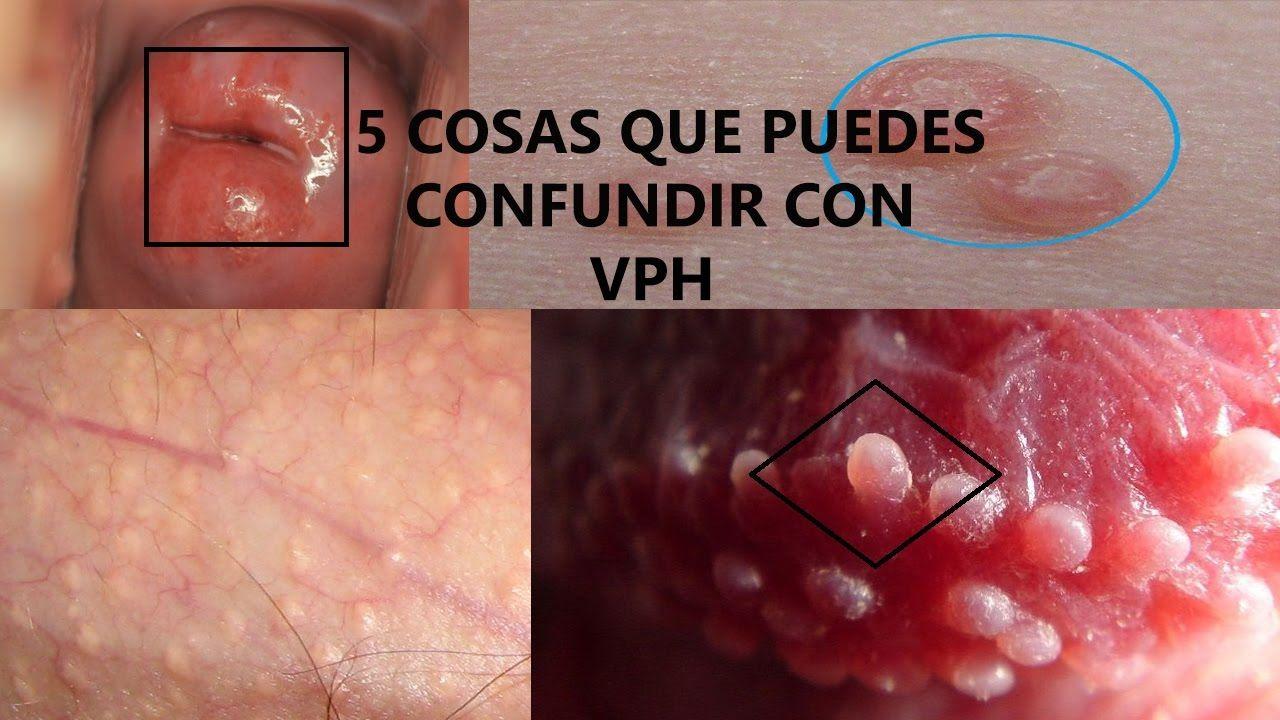 herpes labial papiloma humano)
