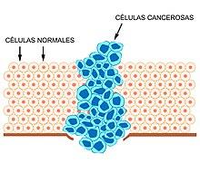 cancer que es y como se produce)