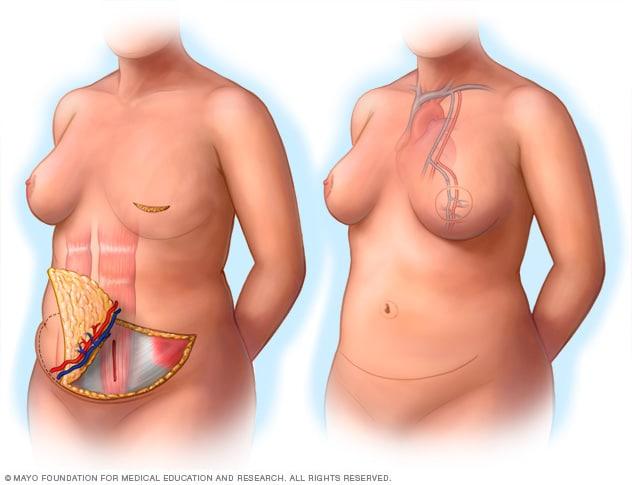 cancerul mamar forme clinice