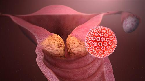 lesion bouche papillomavirus)