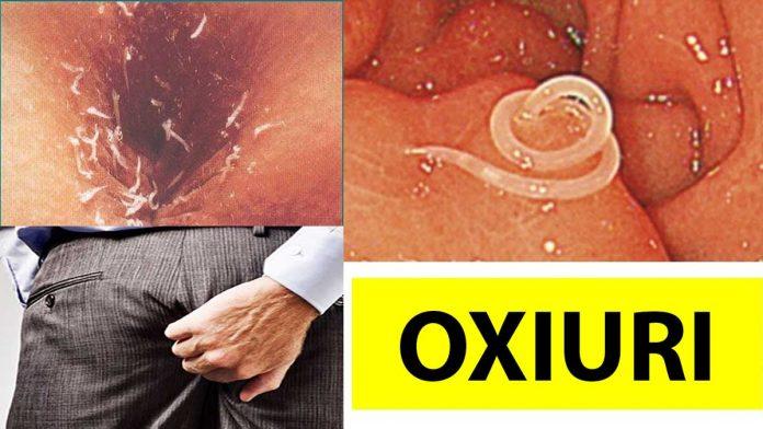 tratament pentru paraziți intestinali)