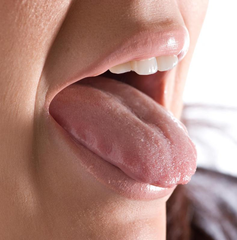 warts on tongue how to remove)