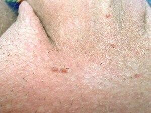 virus papiloma ano vestibular papillomatosis vs warts