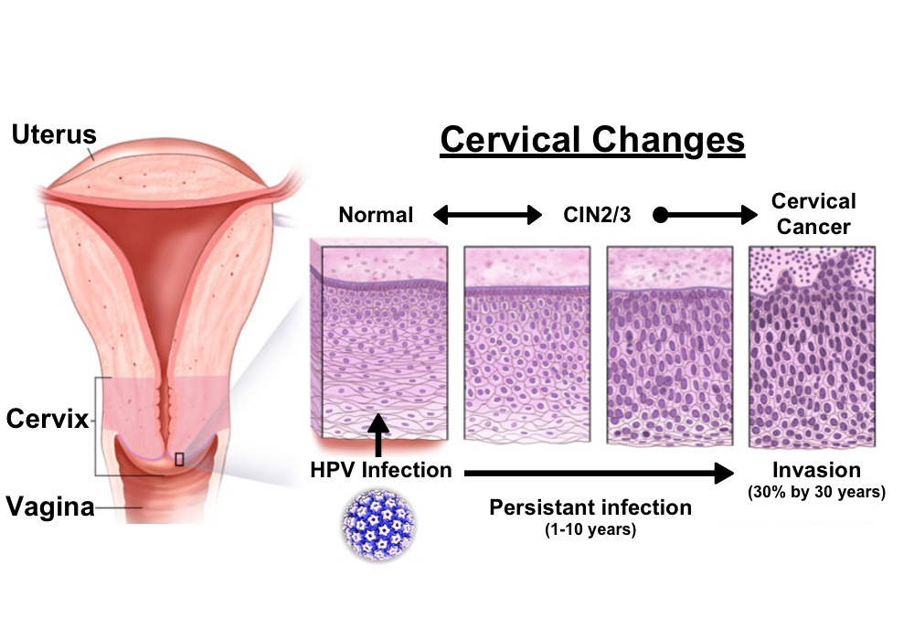 difference between hpv and cervical cancer)