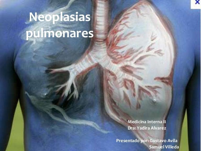cancer pulmonar maligna flatulenta involuntara
