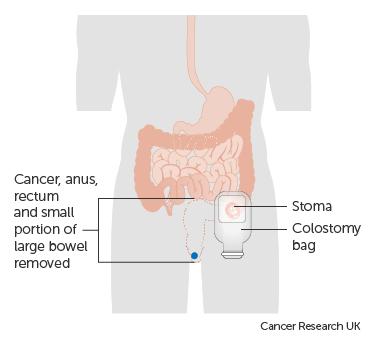 cancer rectal surgery