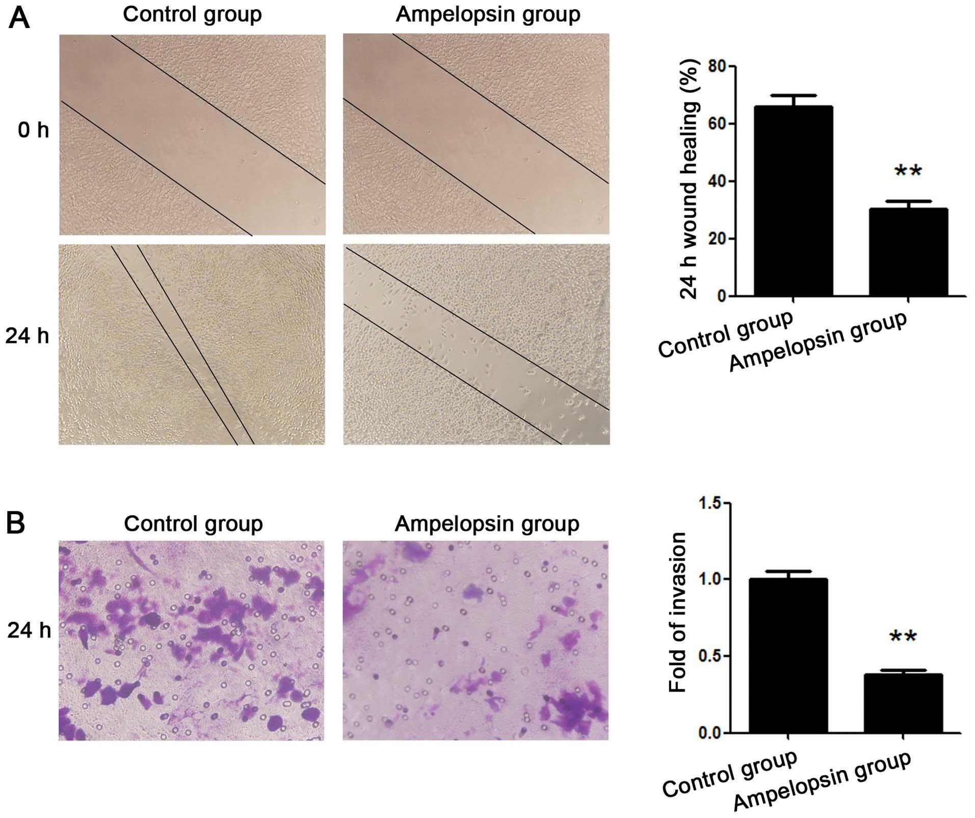 Profil estimare risc cancer ovarian (HE4, CA , scor ROMA) | Synevo