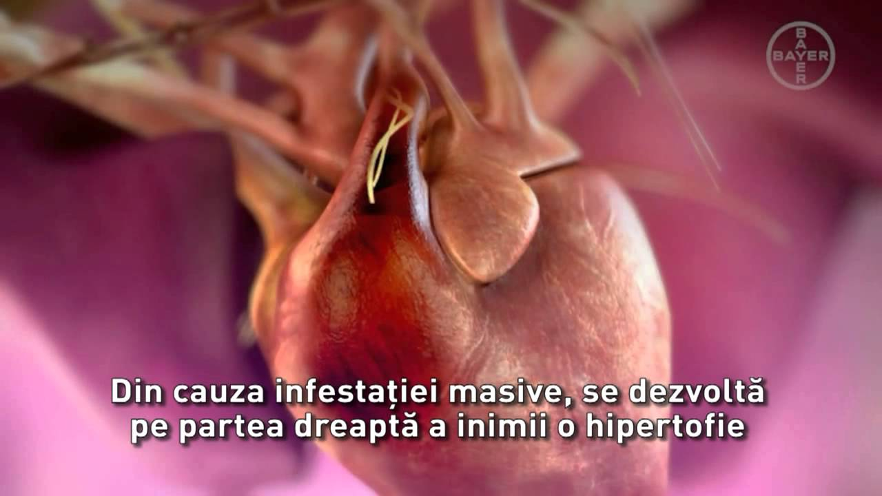 paraziti la inima la om
