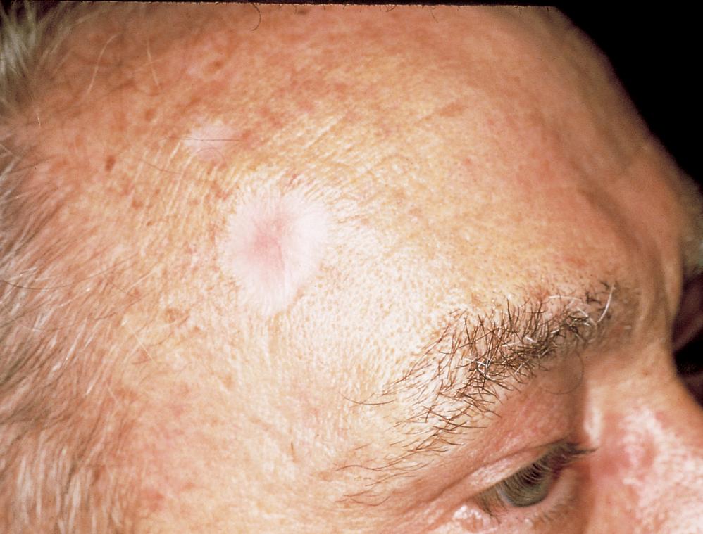 sarcoma cancer skin)