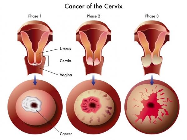 cancer col uterin metastaze)