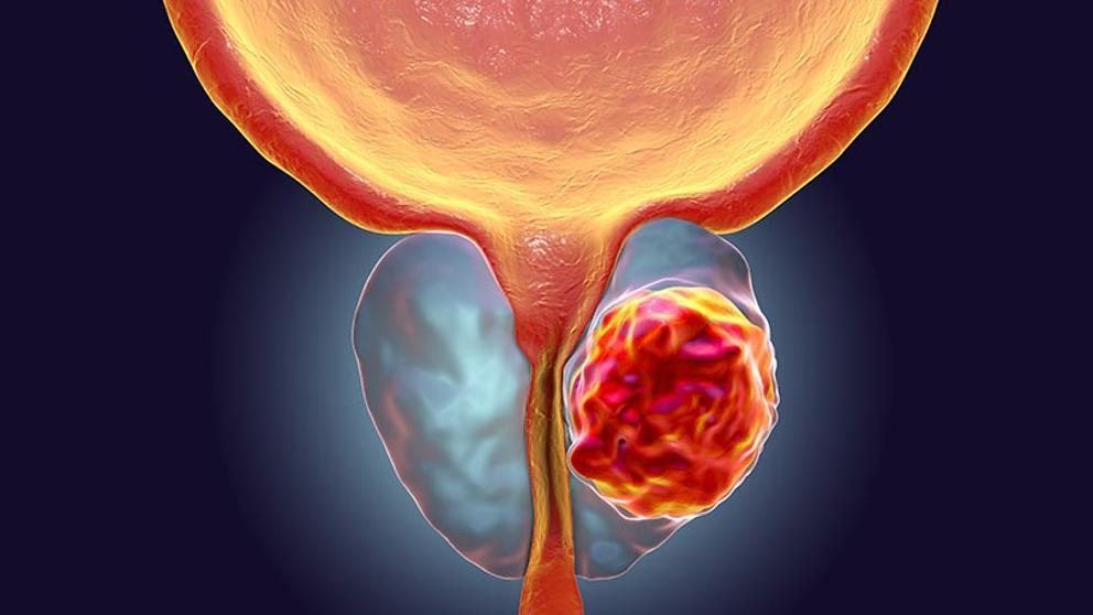 cancer de prostata causas)