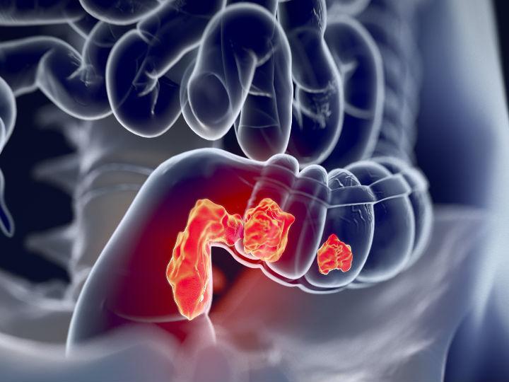 cancer de colon rectal sintomas)