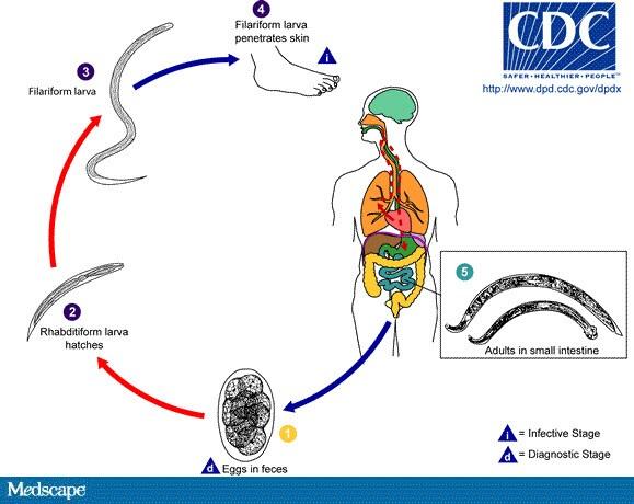 helminth diseases