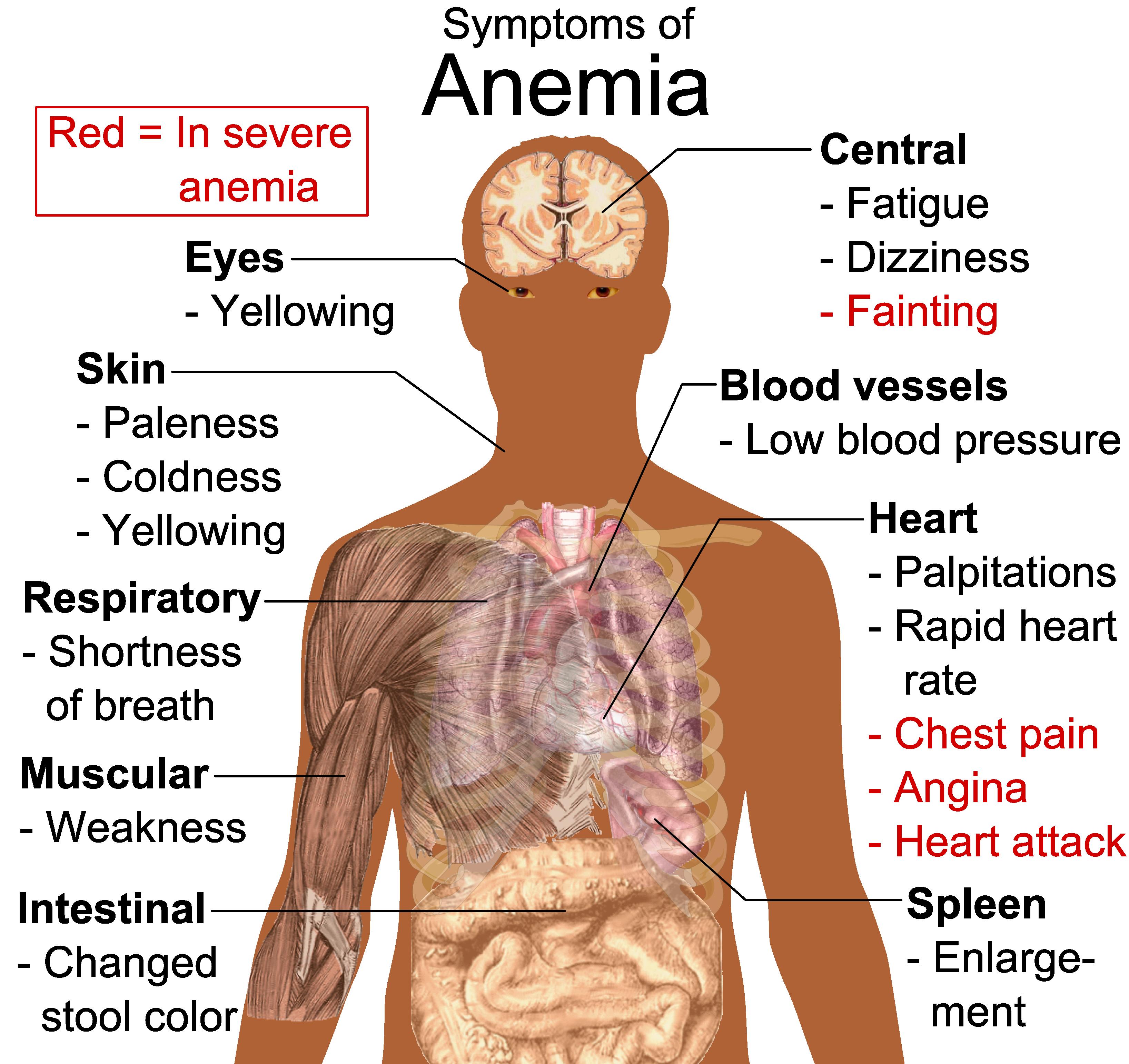 anemie 8 4 wart virus toddler