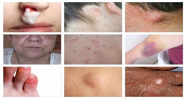 cancerul limfatic simptome)