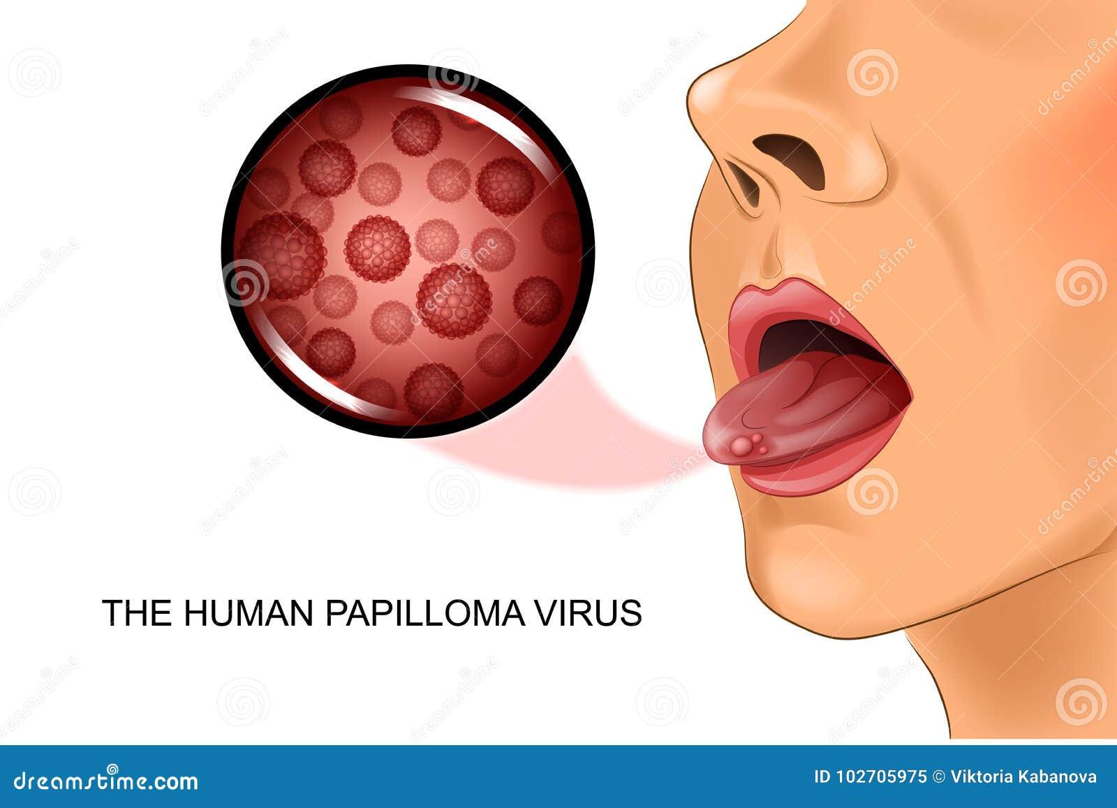 le papillomavirus humain