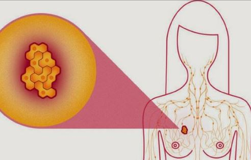unde recidiveaza cancerul de san