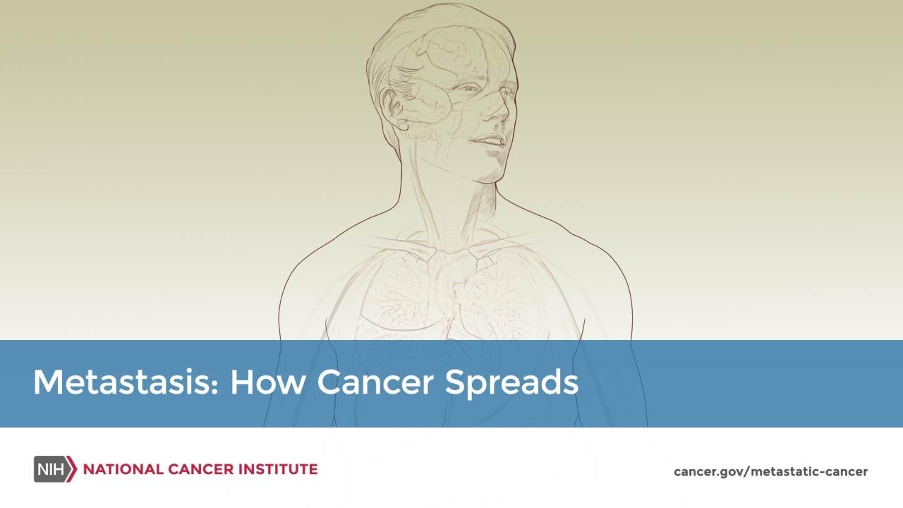 cancer mamar hormon)
