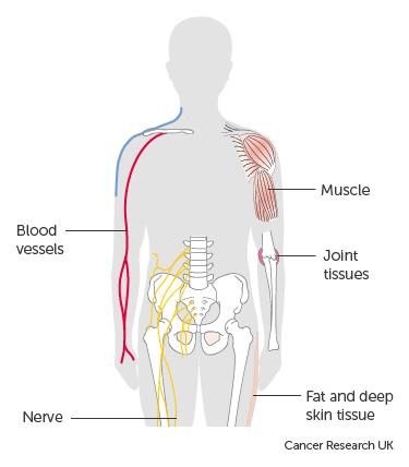 hpv neck cancer treatment cancer cerebral symptoms