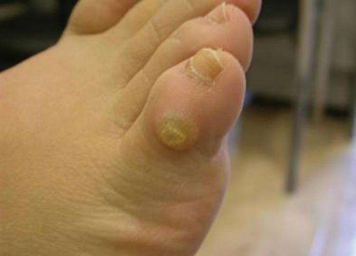 foot wart versus corn)