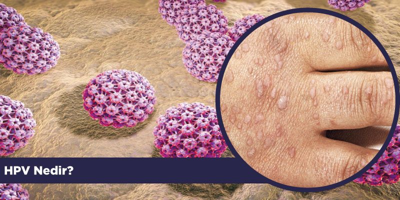 hpv human nedir neuroendocrine cancer lung small cell
