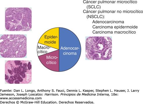 cancer pulmonar epidermoide