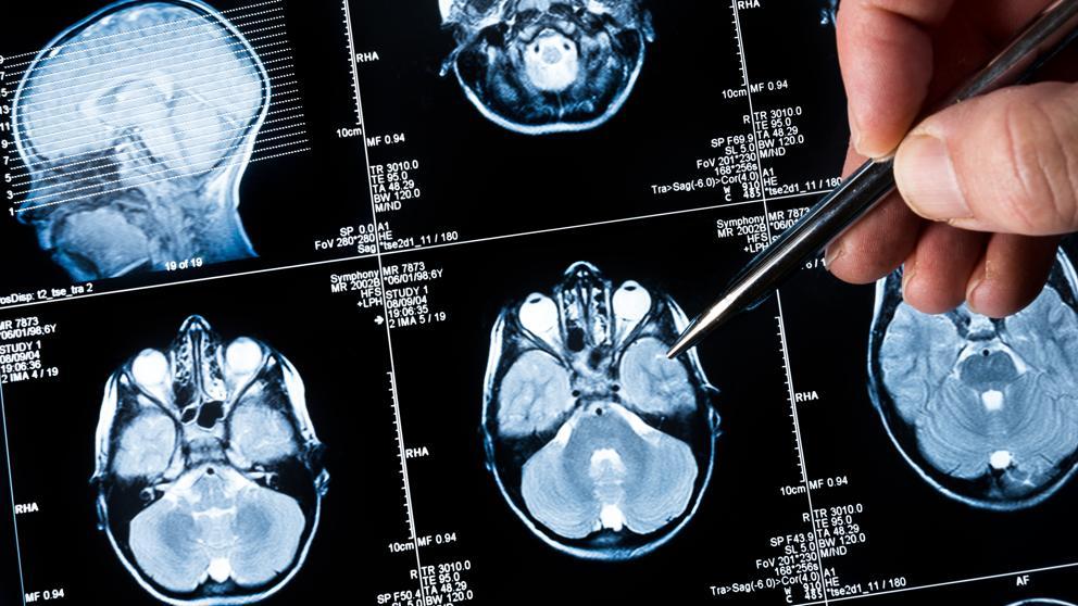 cancer cerebral maligno