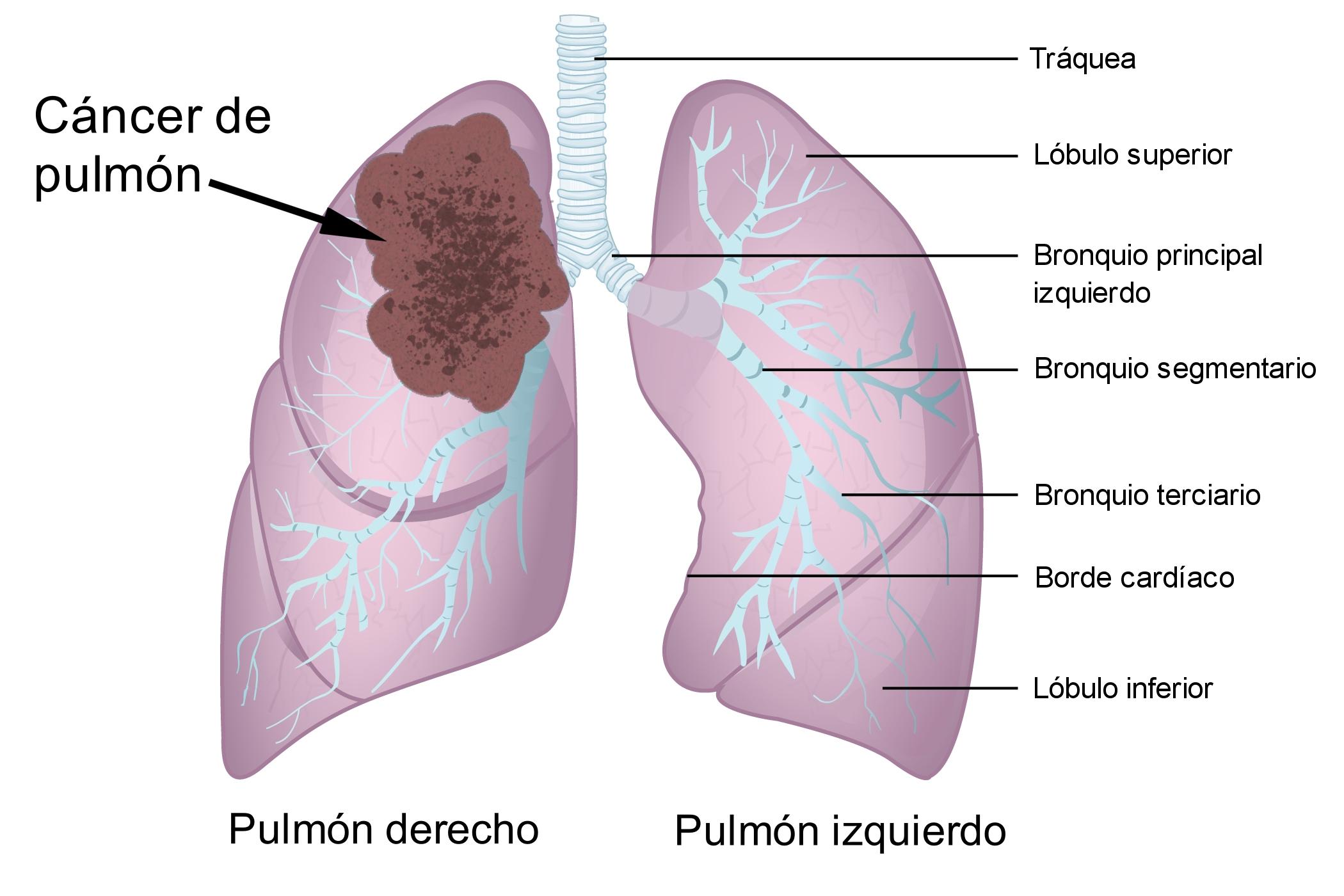 cancer bronquio pulmonar)