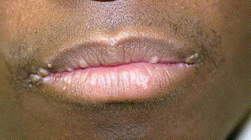 hpv on lip treatment