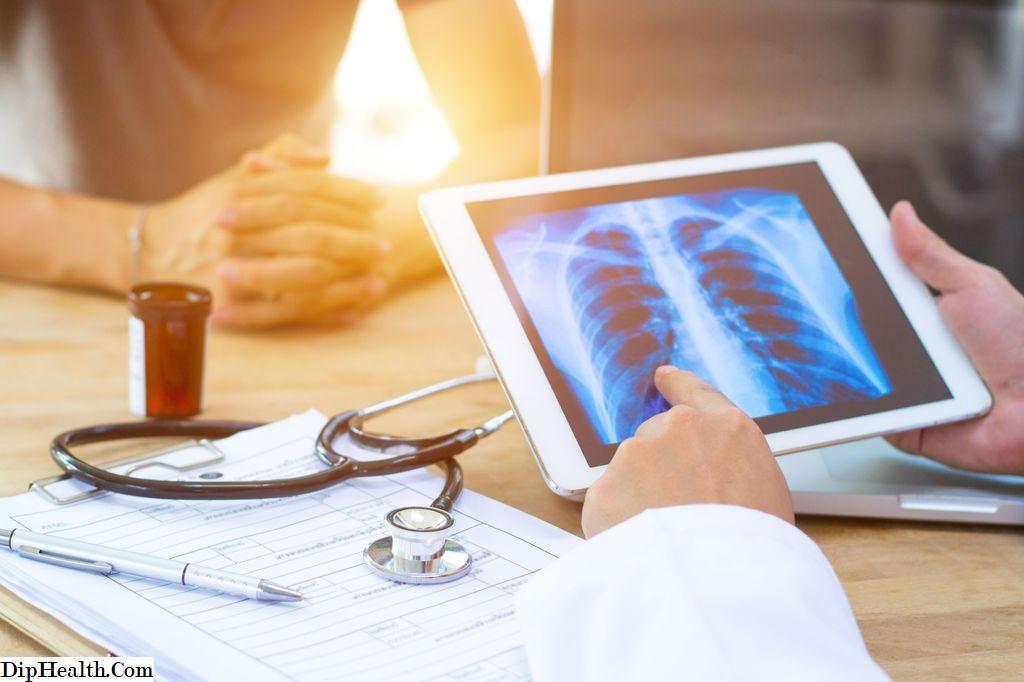 cancer pulmonar neuroendocrin